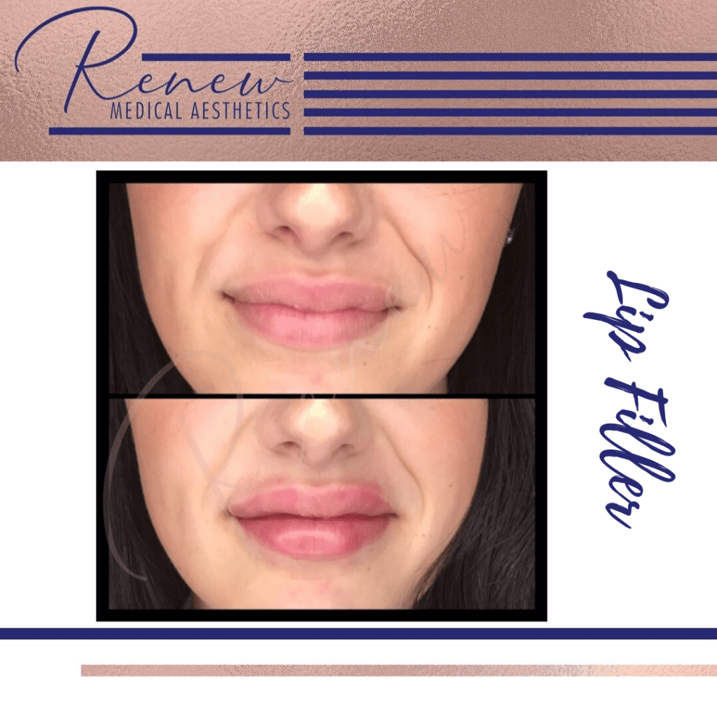 Before and after lip filler frontal