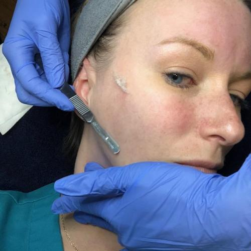 The wisco mama renew Dermaplaning in action