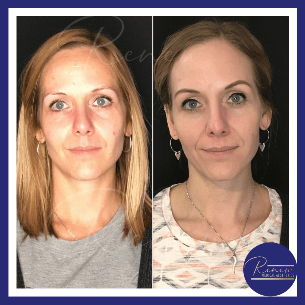 full face skincare and dysport