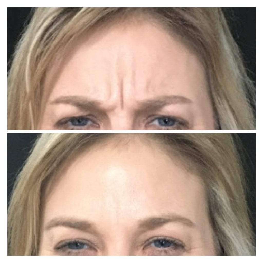 Dysport angry lines frown lines Renew Medical Aesthetics WI